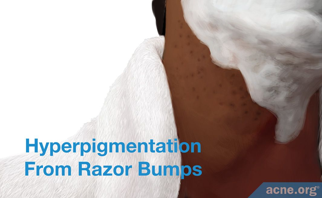 Hyperpigmentation From Razor Bumps