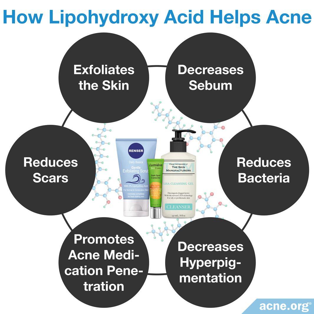 How Lipohydroxy Acid Helps Acne