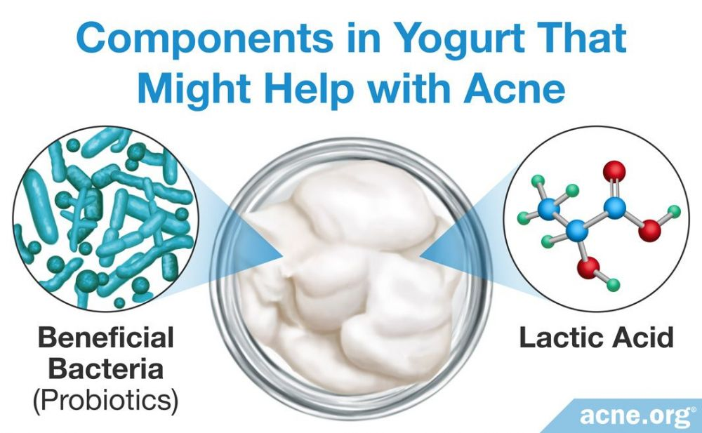 Components in Yogurt That Might Help with Acne
