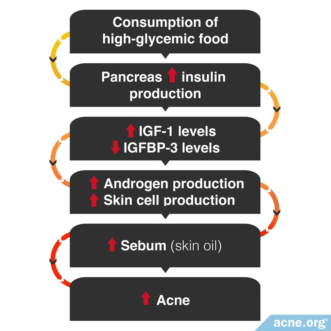 How the Consumption of High-glycemic Foods Could Lead to Increased Acne