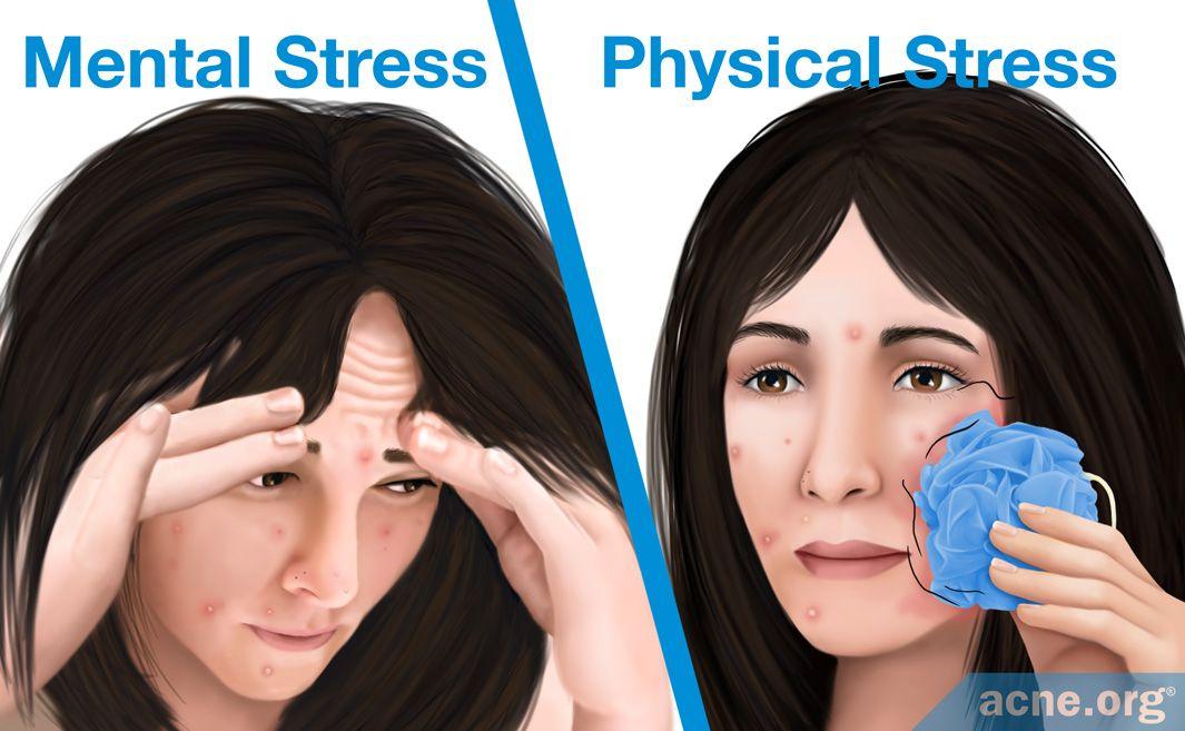 14 Mental Stress Versus Physical Stress.jpg