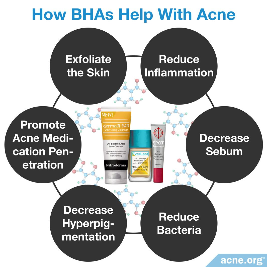 How BHAs Help With Acne