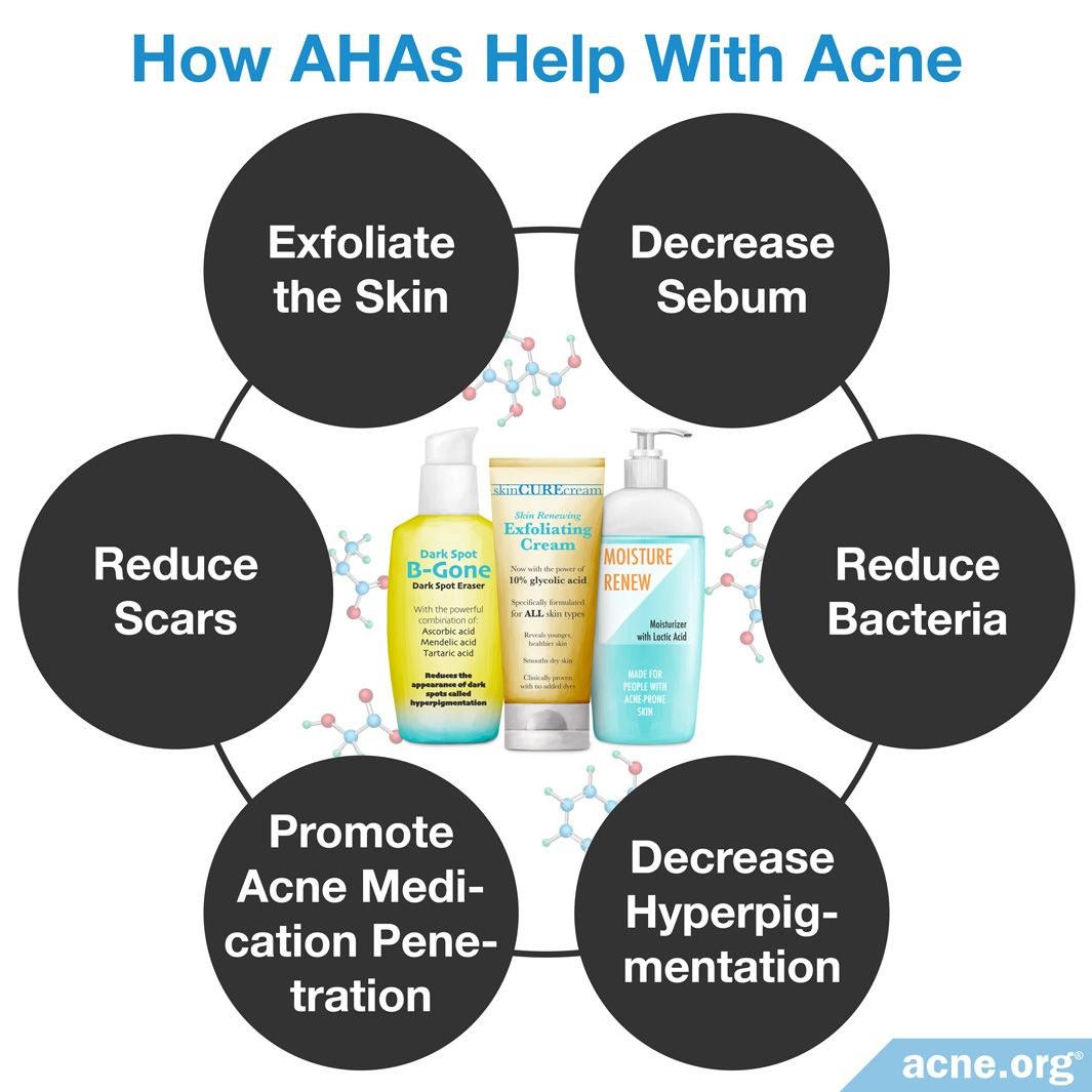 How AHAs Help With Acne