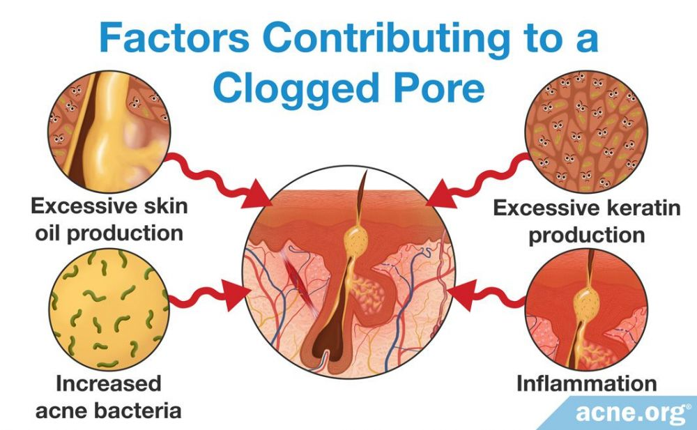 Factors Contributing to a Clogged Pore