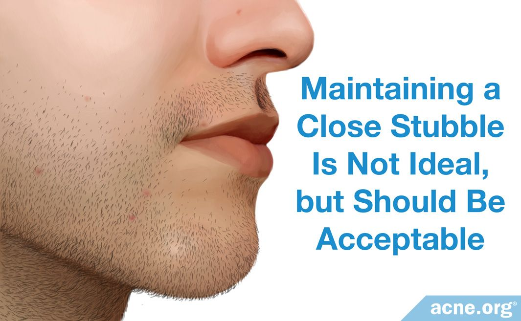 Maintaining a Close Stubble Is Not Ideal, but Should be Acceptable