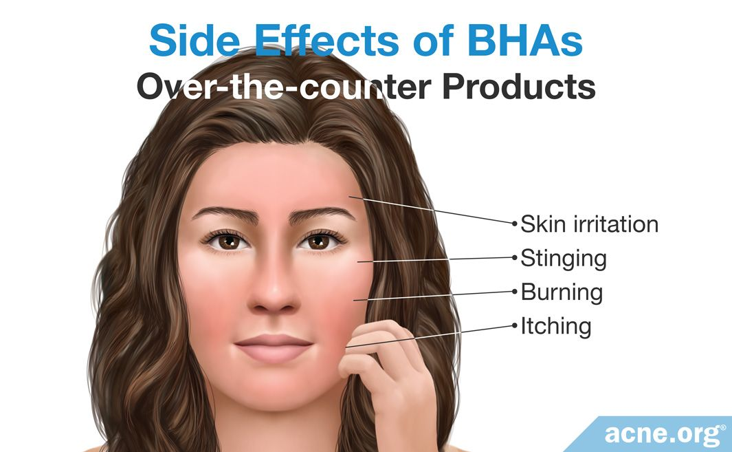 Side Effects of Over-the-counter BHA Products