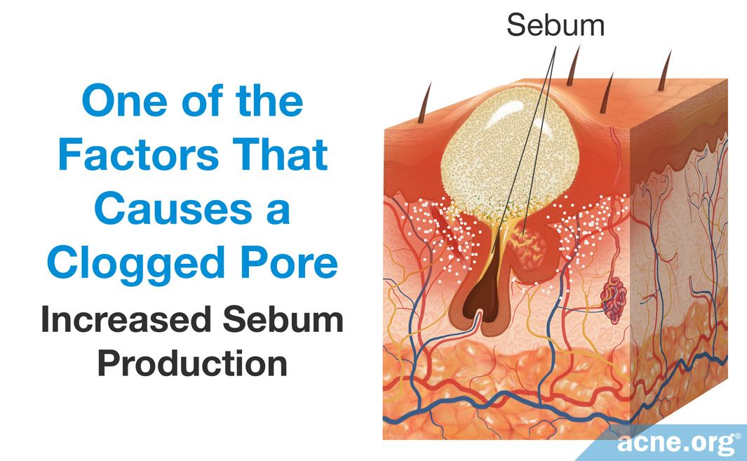 00 Increased Sebum Production Causes a Clogged Pore.jpg