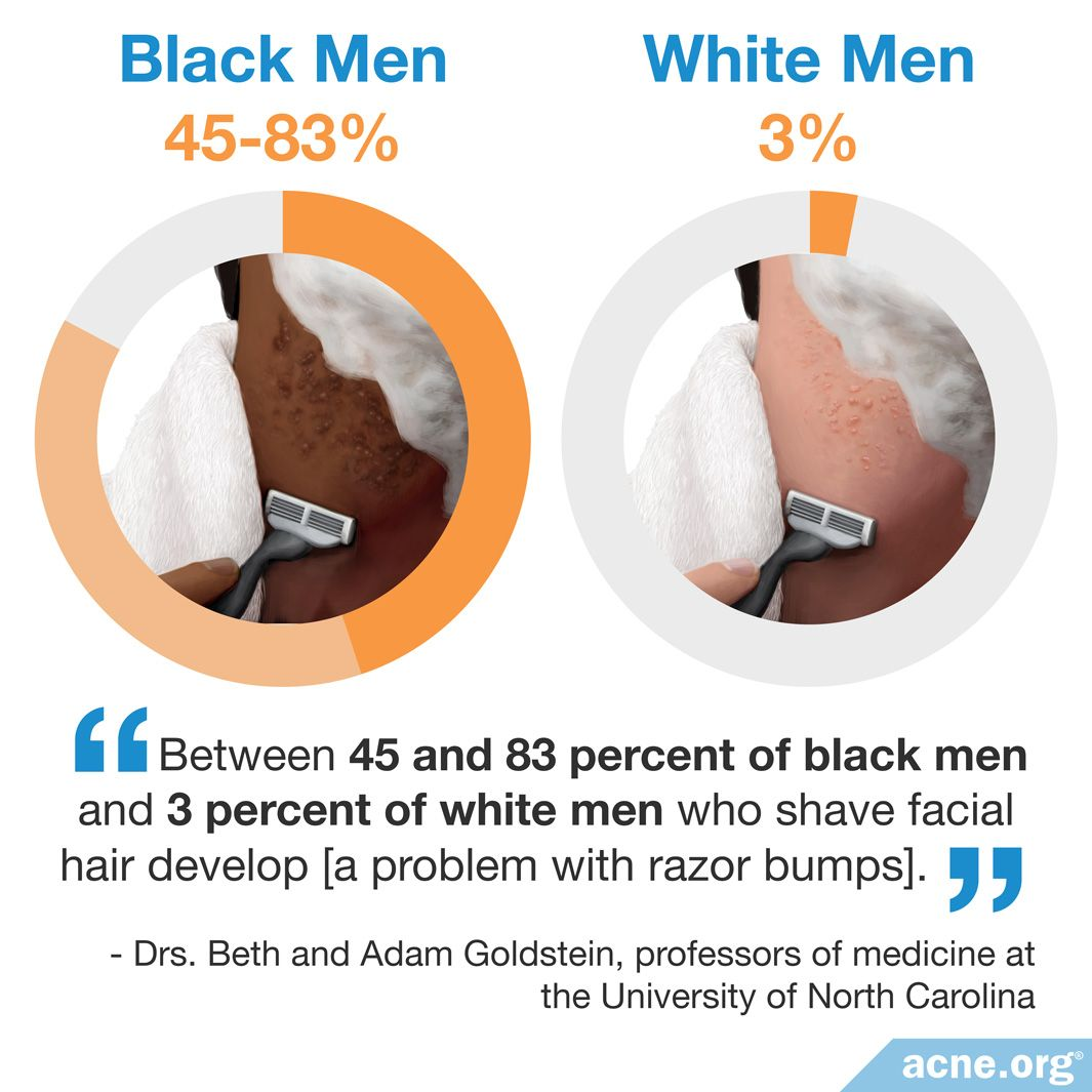 Between 45 and 83 percent of black men and 3 percent of white men who shave facial hair develop a problem with razor bumps
