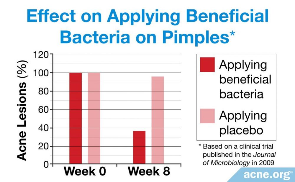 Effect on Applying Beneficial Bacteria on Pimples