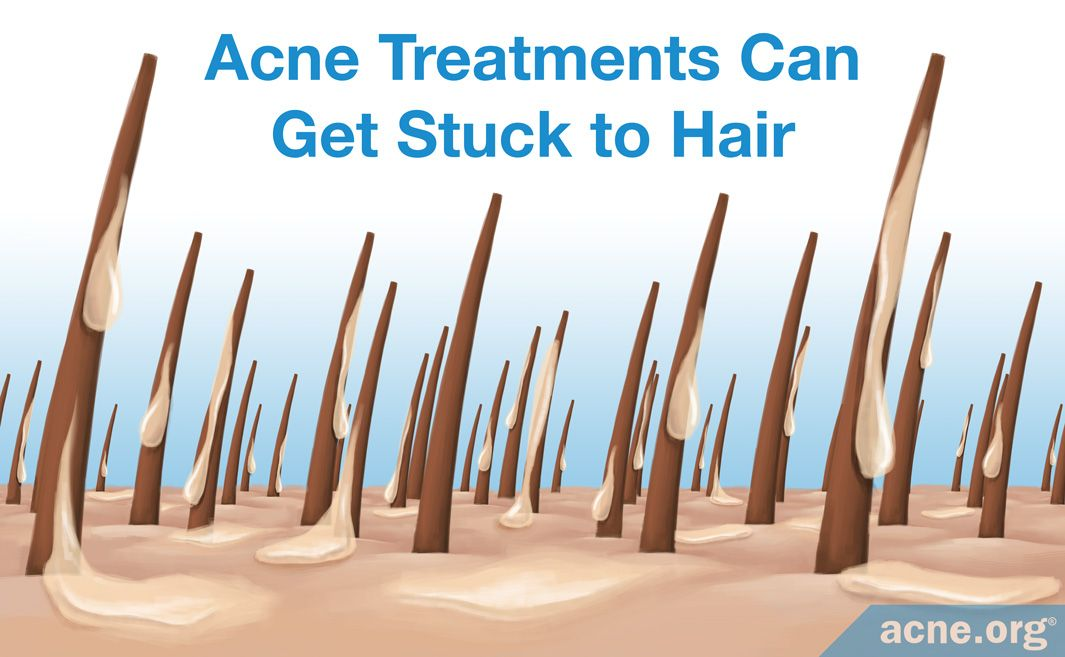 Acne Treatments Can Get Stuck to Hair
