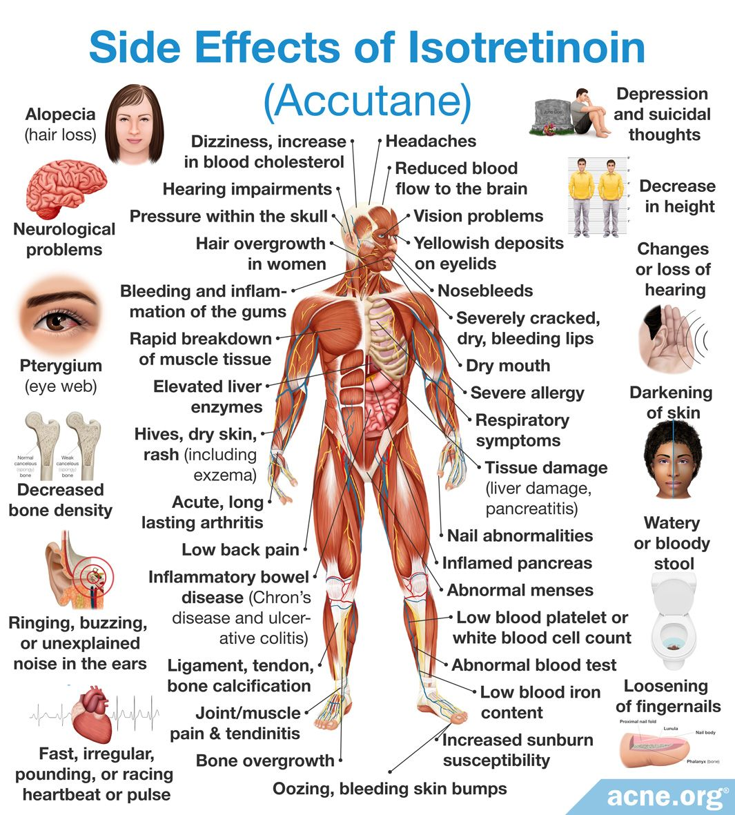 Side Effects of Isotretinoin Accutane