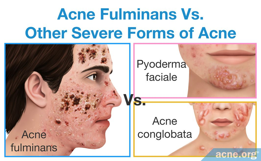 Acne Fulminans Vs. Other Severe Forms of Acne