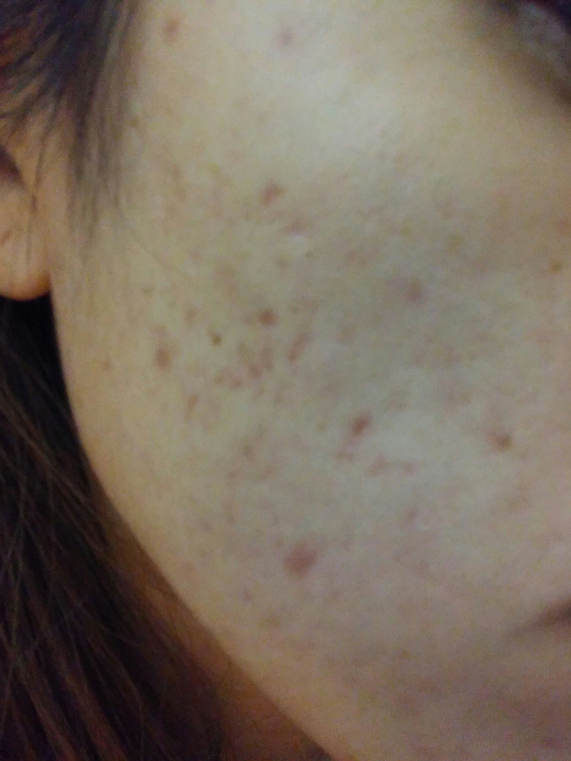 Help with this scars and discoloration - Scar treatments ...