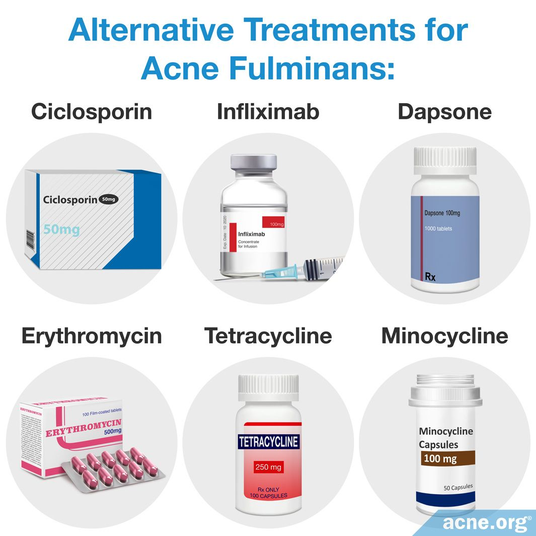 Alternative Treatments for Acne Fulminans