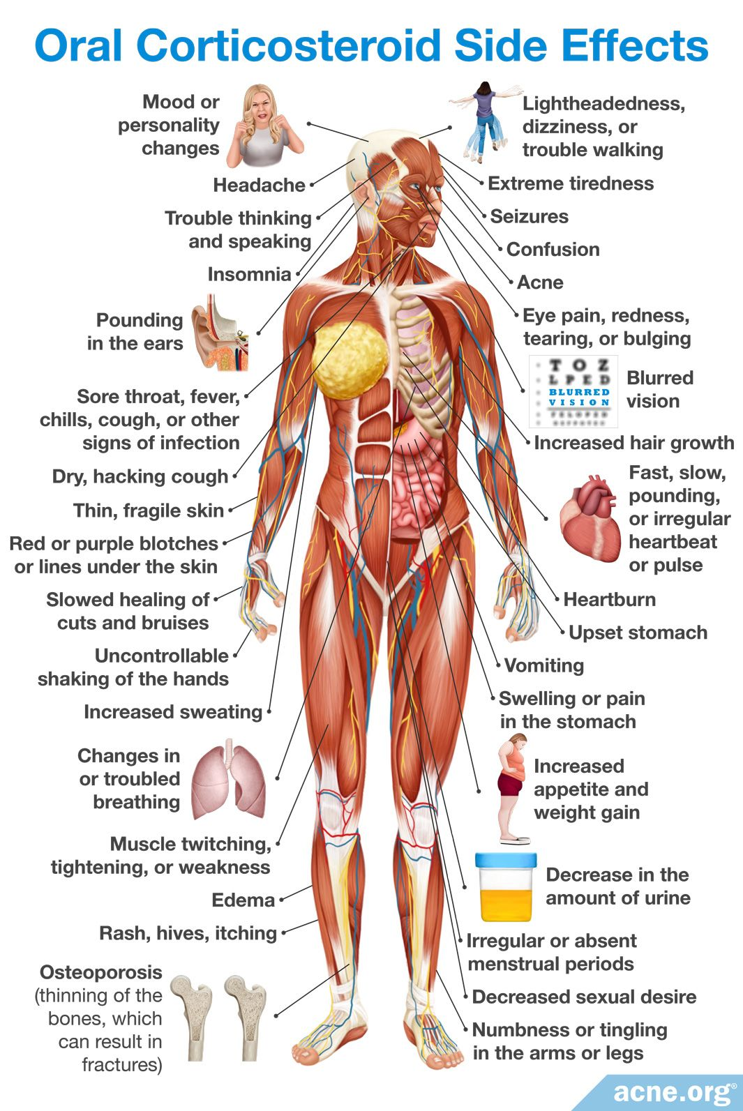 Oral Corticosteroid Side Effects