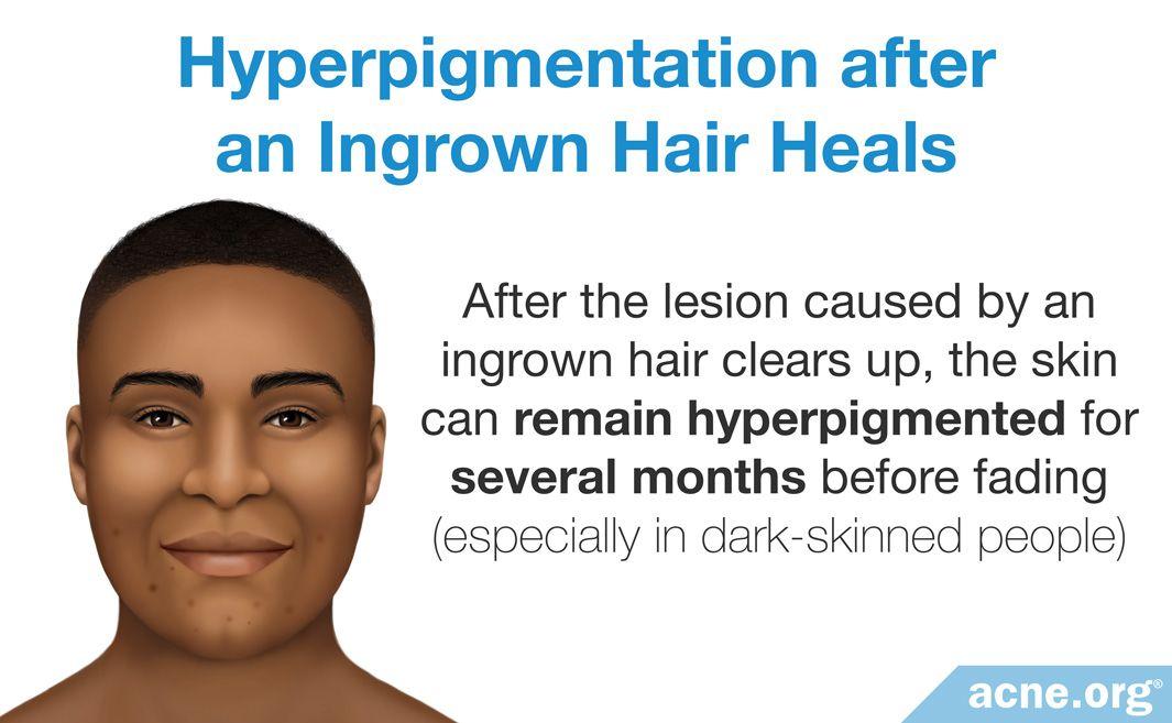 Hyperpigmentation after an Ingrown Hair Heals