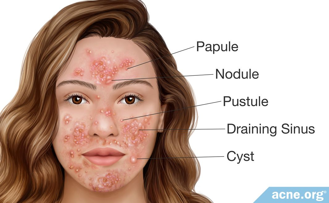 Pyoderma Faciale Types of Lesions