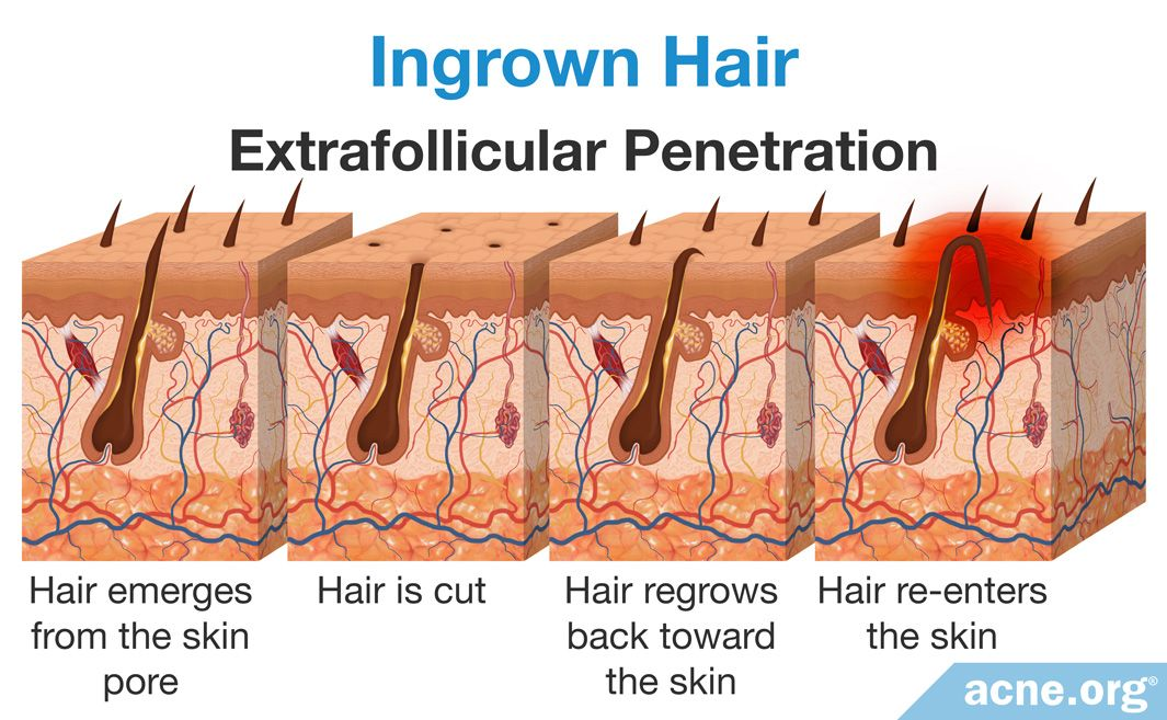 Ingrown Hair Extrafollicular Penetration