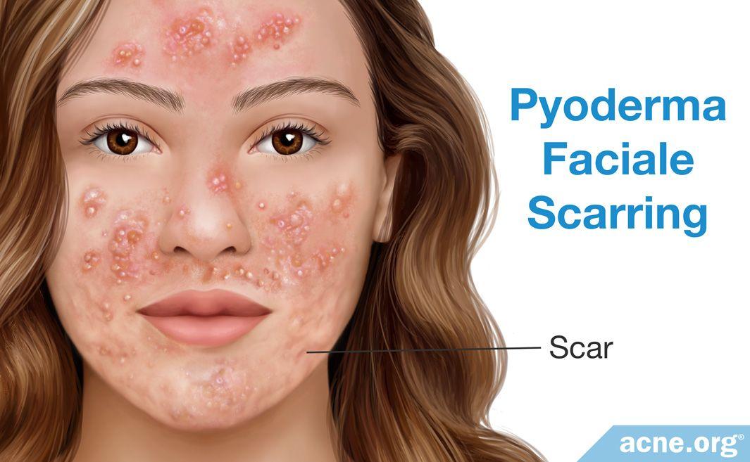 Pyoderma Faciale Scarring