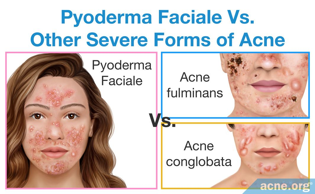 Pyoderma Faciale Vs. Other Severe Form of Acne