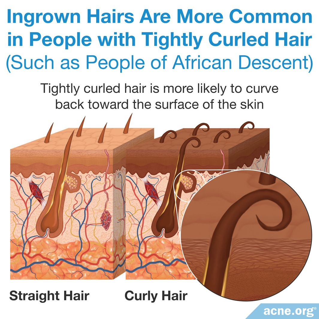 Ingrown Hairs Are More Common in People with Tightly Curled Hair