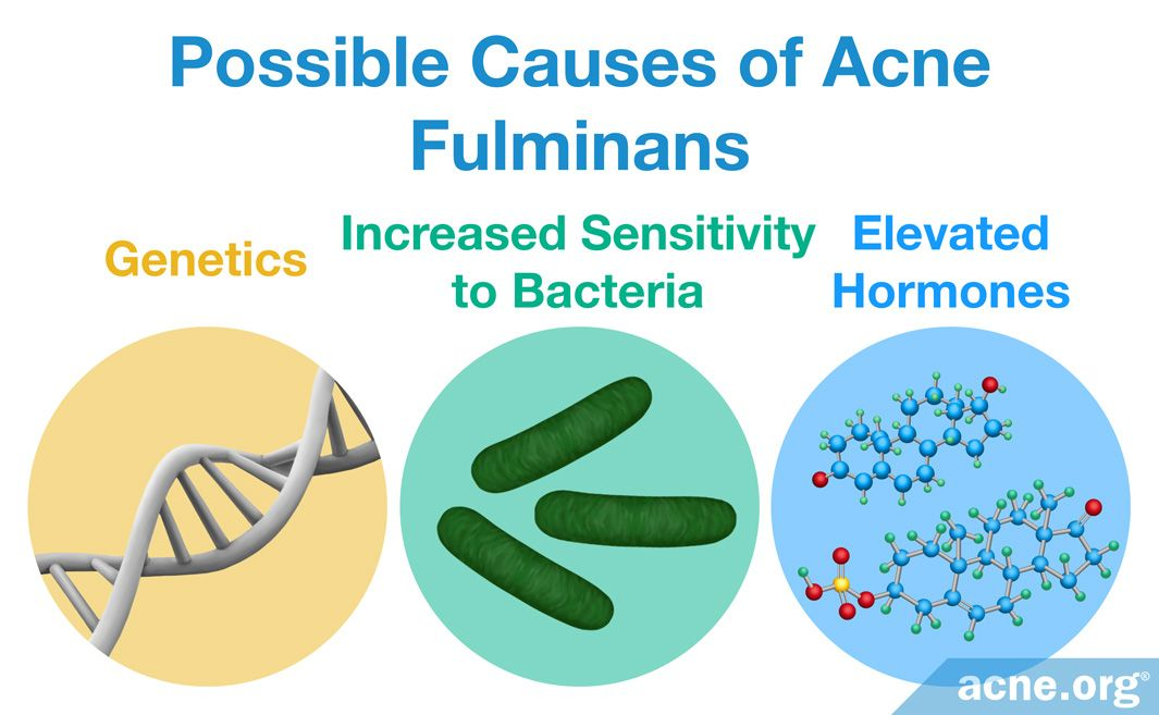 Possible Causes of Acne Fulminans