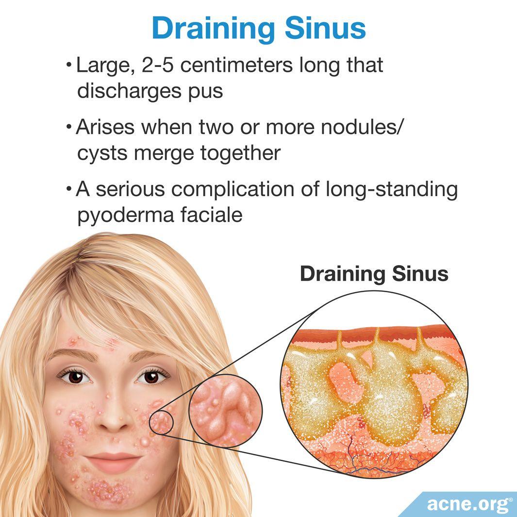 Draining Sinus