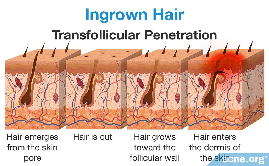 Ingrown Hair Transfollicular Penetration