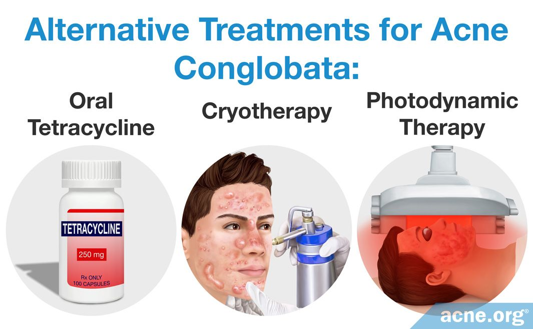 Alternative Treatments for Acne Conglobata