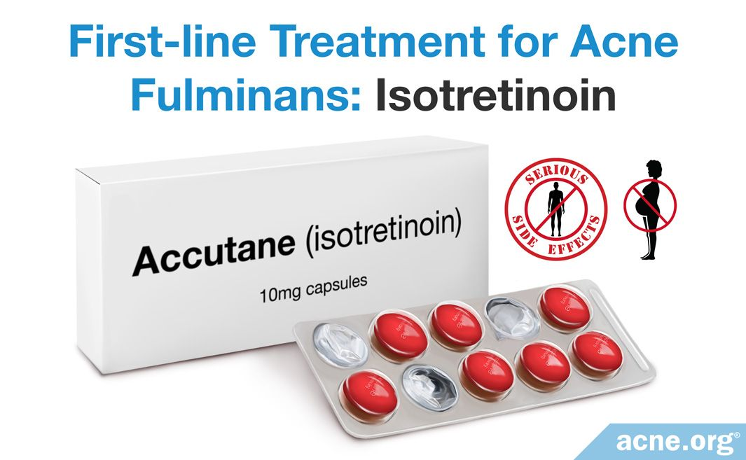 First-line Treatment for Acne Fulminans Isotretinoin