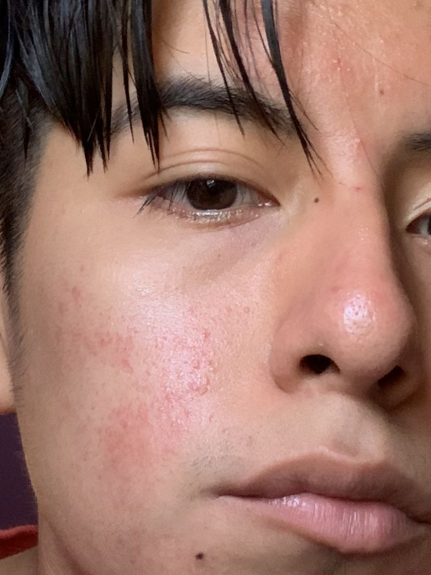 HELP?! Is this Rosacea or acne - Rosacea & facial redness