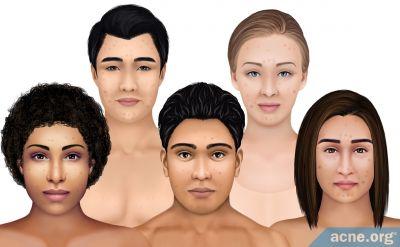 Handling Hyperpigmentation