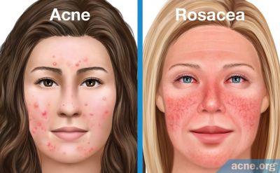 Acne vs. Rosacea