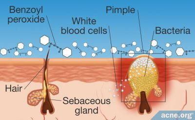 How Does Benzoyl Peroxide Work in the Skin?