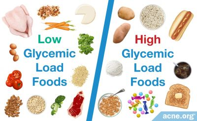 Glycemic Load Diet and Acne