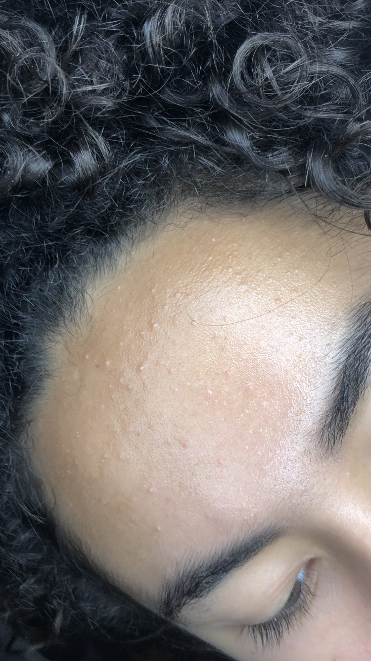 Fungal Acne Or Not General Acne Discussion Acne Org