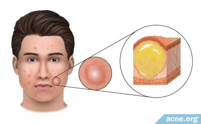 What Is an Acne Cyst?