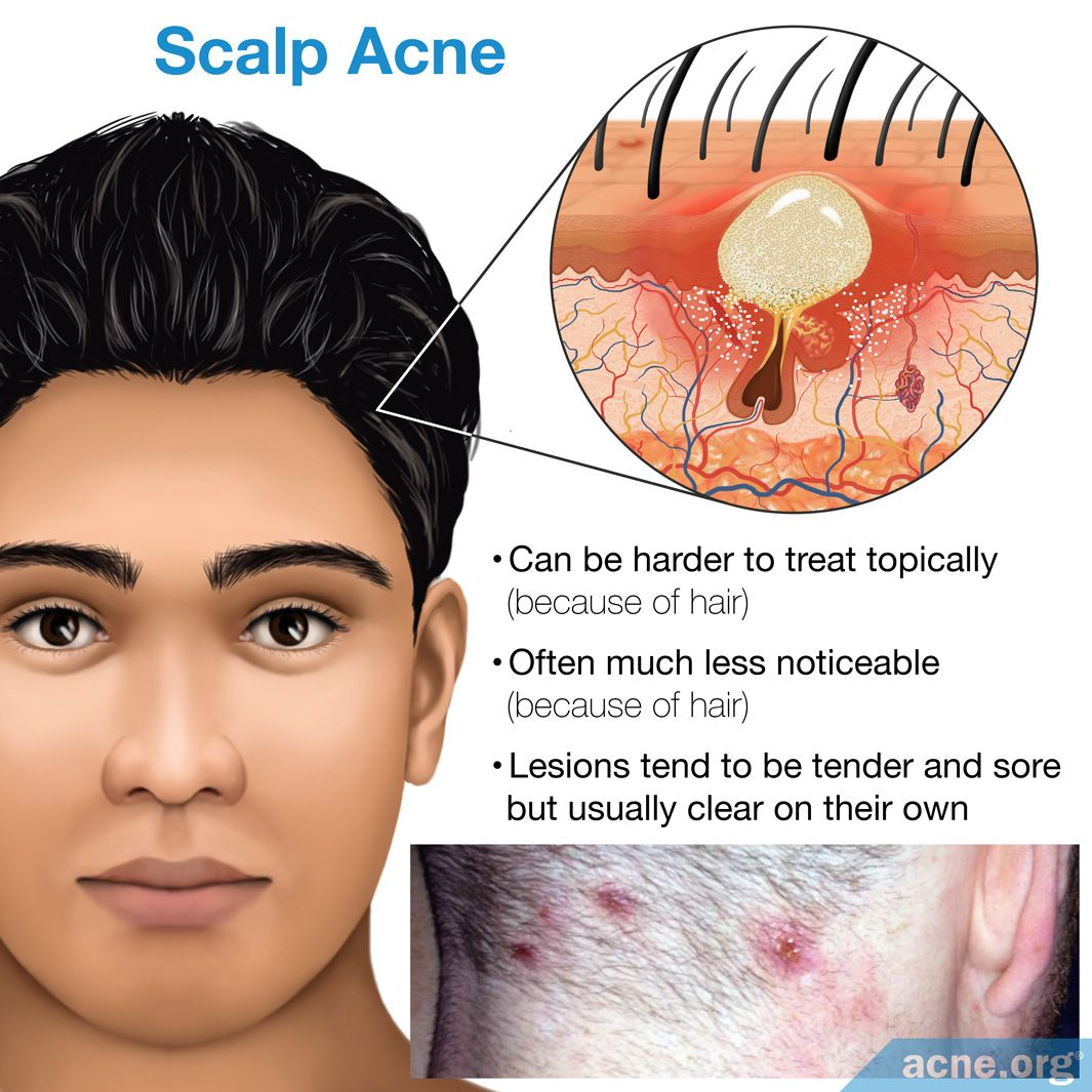 Natural scalp treatment acne #1 Rated