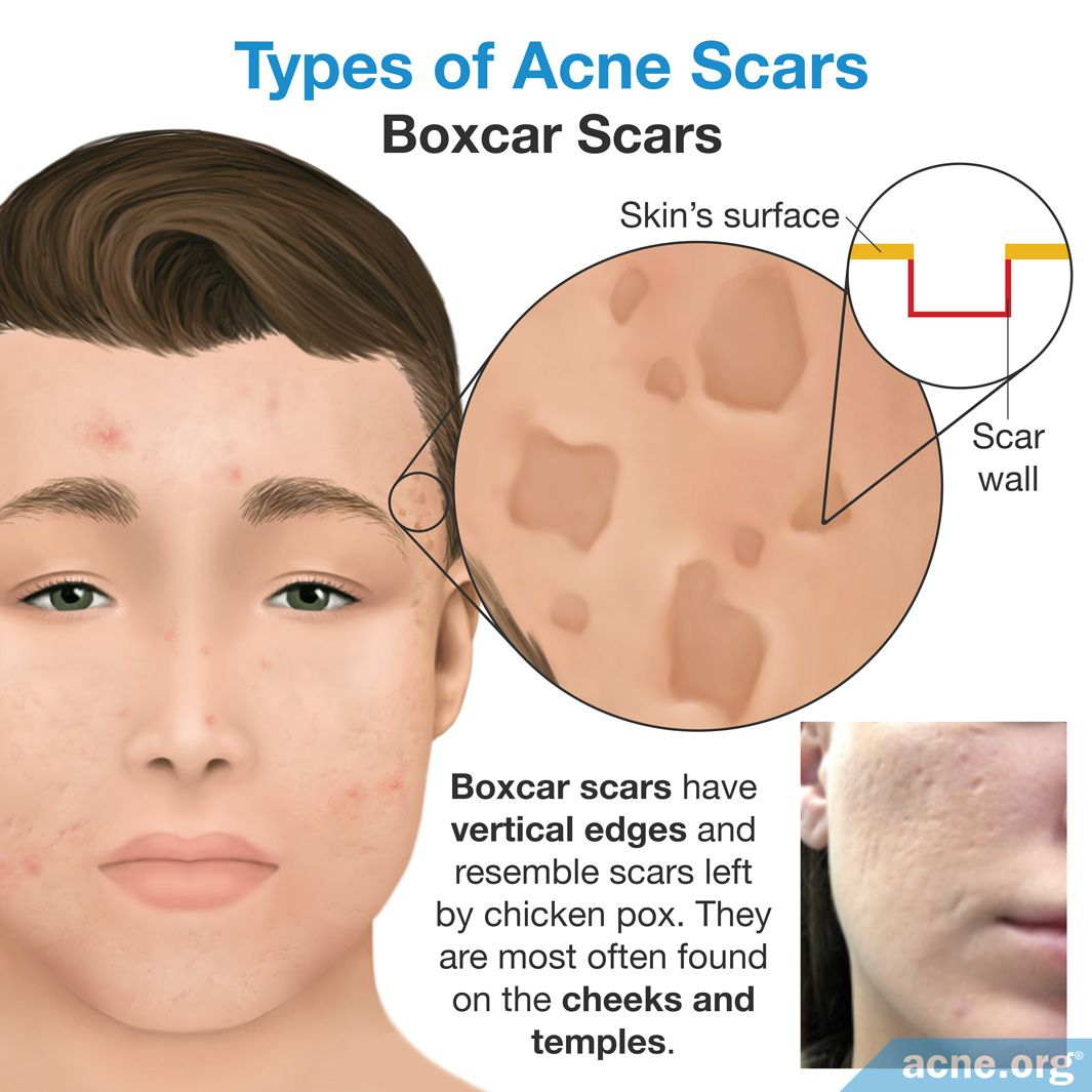 Acne Scar Treatments Guide Acne Org