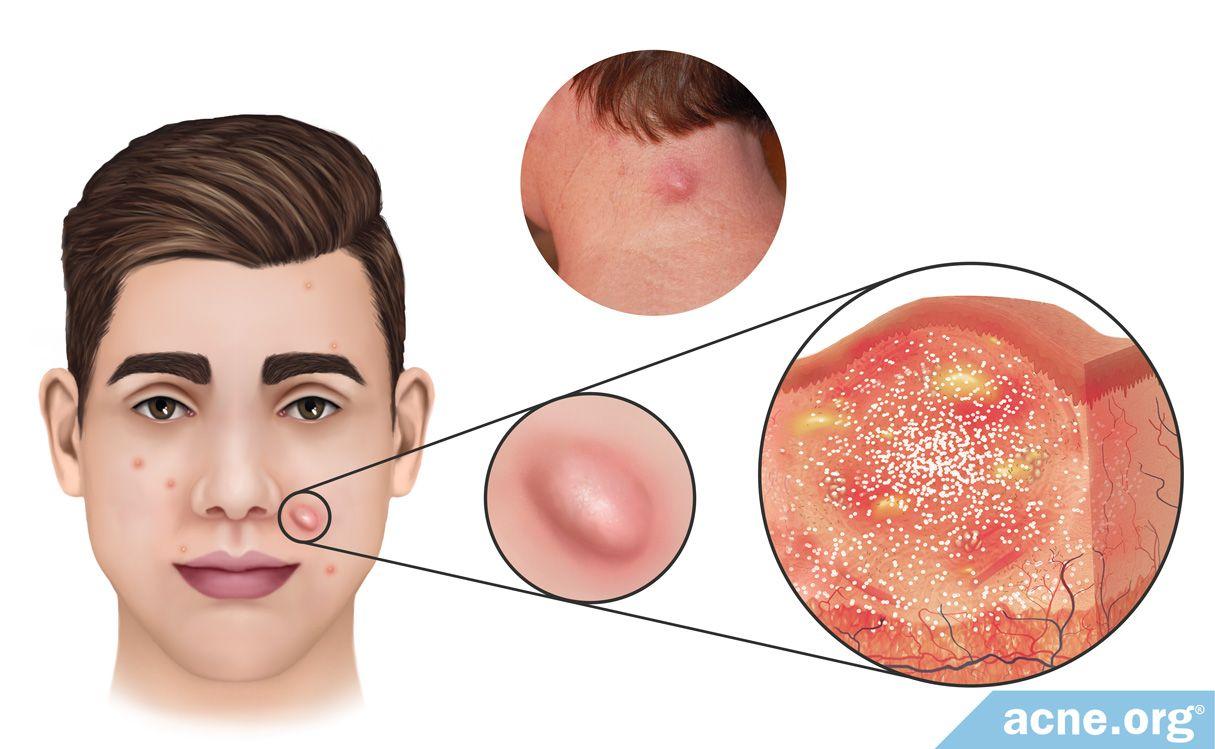 What Is An Acne Nodule Acne Org