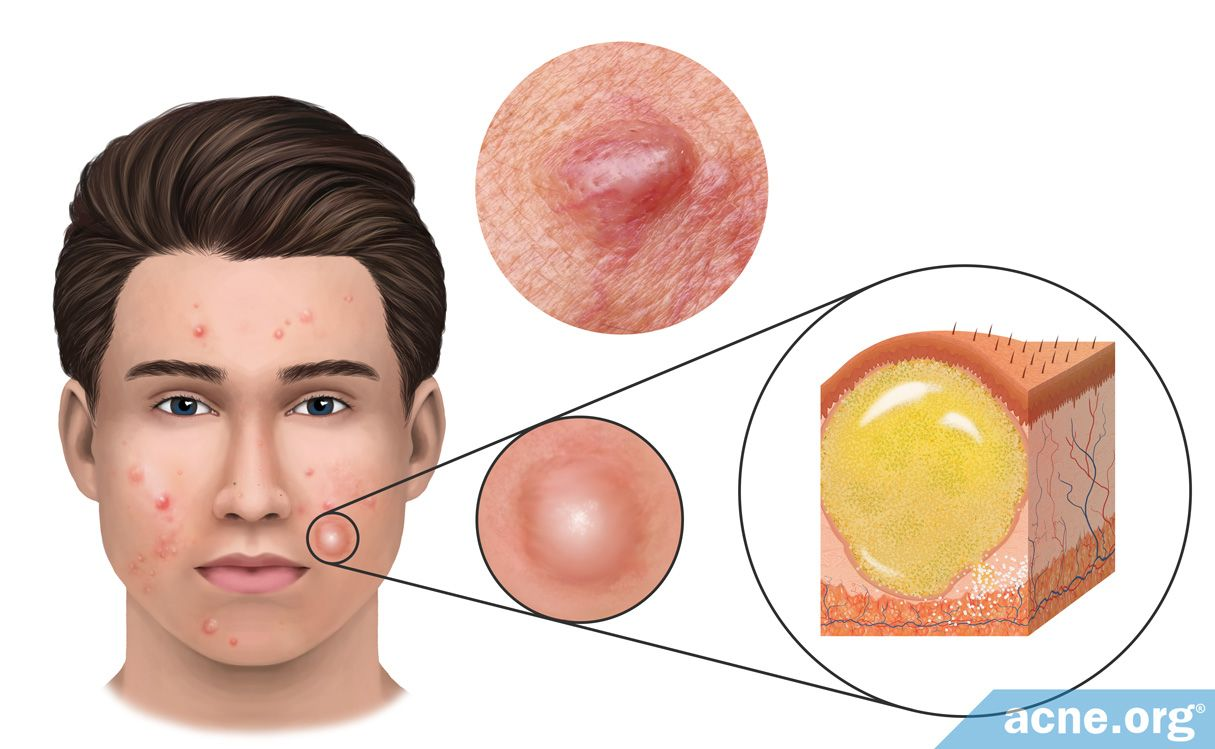 What Is An Acne Cyst Acne Org