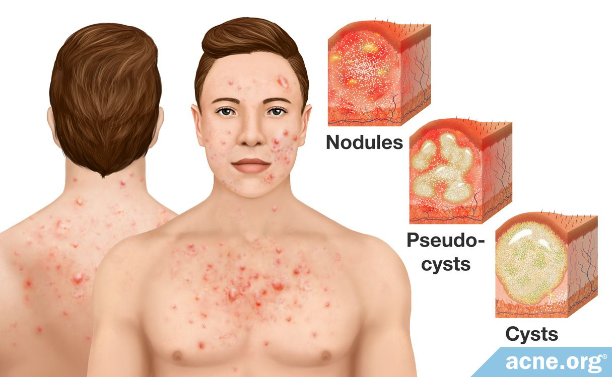 Cystic Acne On The Body Acne Org