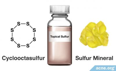 Sulfur for Acne