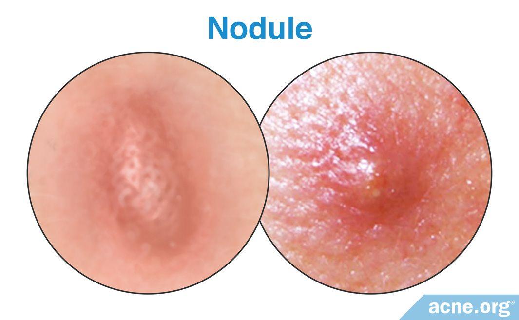 Nodule
