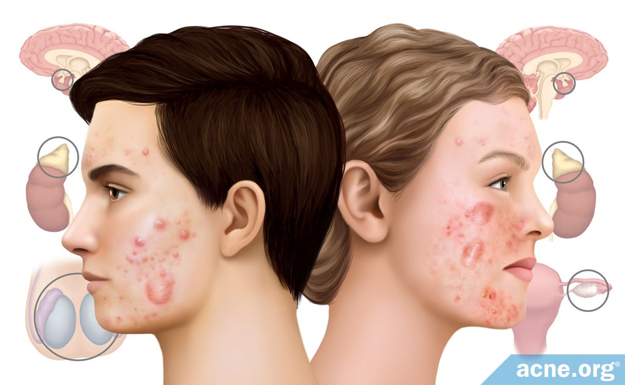 Do Hormones Cause Cystic Acne Acne Org