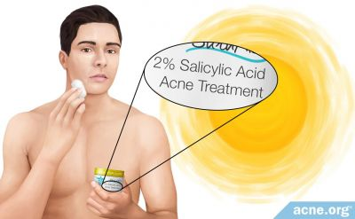 Does Salicylic Acid Make Your Skin More Sensitive to the Sun?