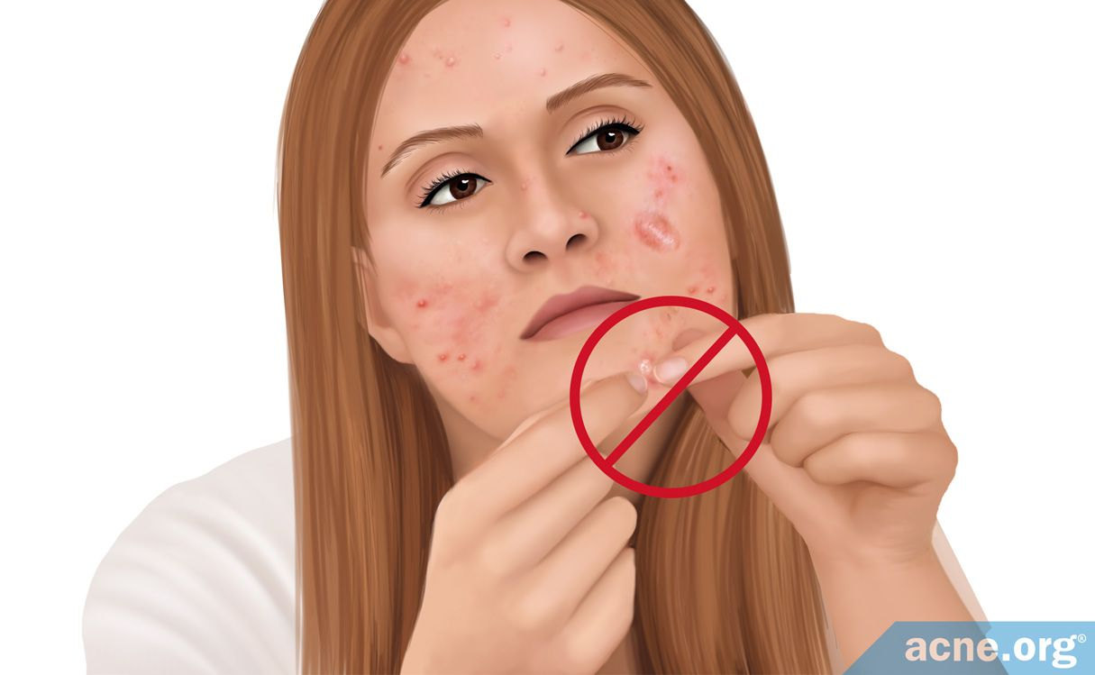 Should You Pop Cystic Acne Acne Org
