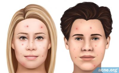 White Skin and Acne