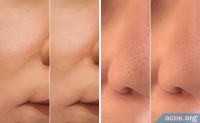 Can You Reduce the Size of Your Skin Pores?