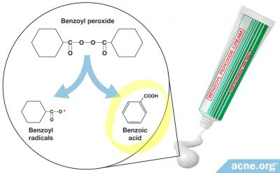 What is Benzoic Acid and Can it Help Clear Acne?
